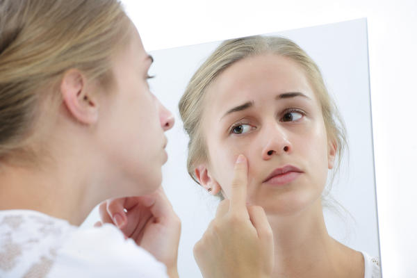 Is it possible for you to get pimples on your face from an allergic reaction?