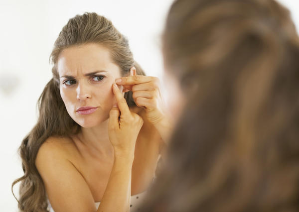 How old should you be to have laser surgery for acne scars?