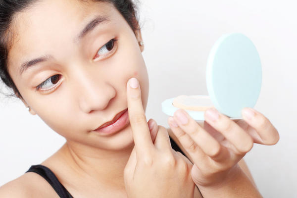 Can putting eyedrops on pimples make the redness go away?