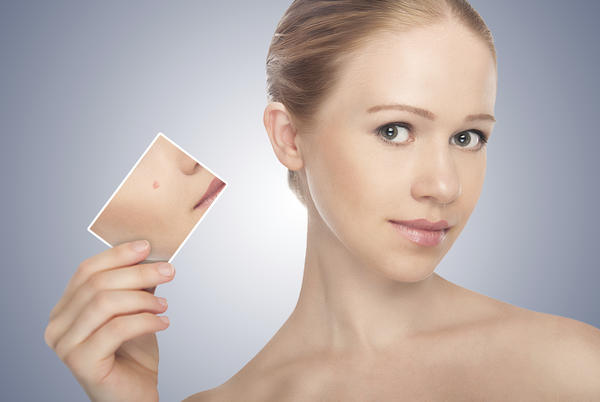 Will rosacea cause acne?
