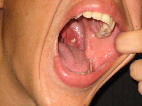 What's a natural treatment for tonsil stones and my bad breath?