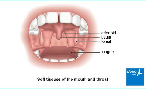 Is total loss of voice a symptom of tonsillitis?