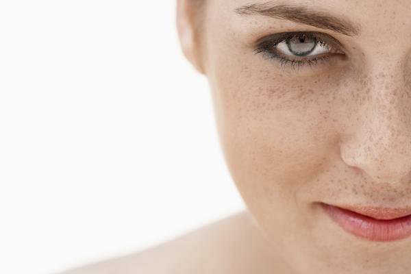 How can I get rid of freckles safely?