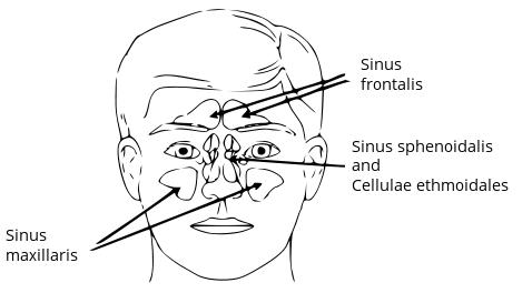 What is frontal hypoplastic sinuses?