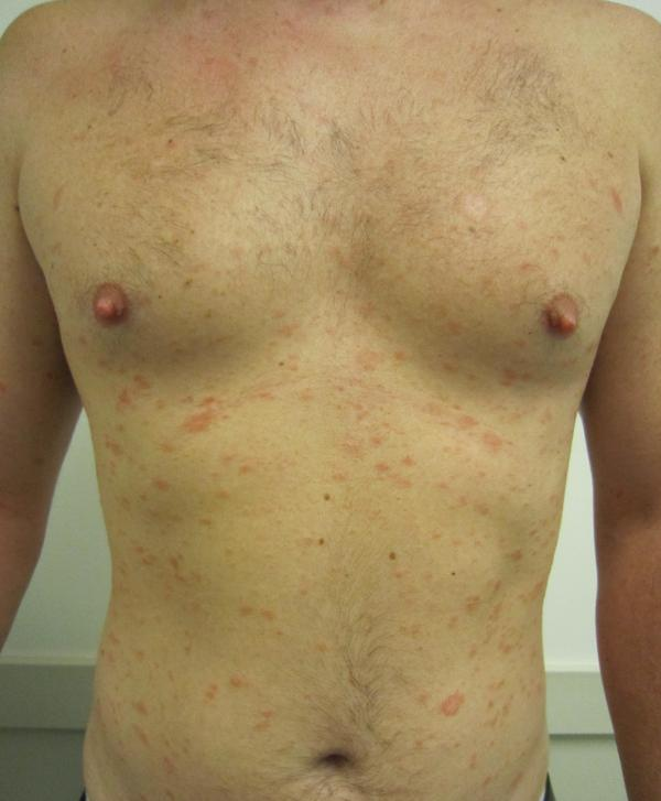 pityriasis rosea on face