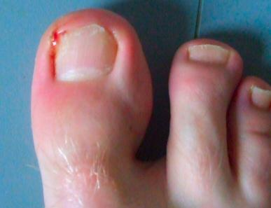 Is this an infection or wound. dark red area on left big toe. when i clipped nails, small amount of pus exited corner of toe. also extremely painful.