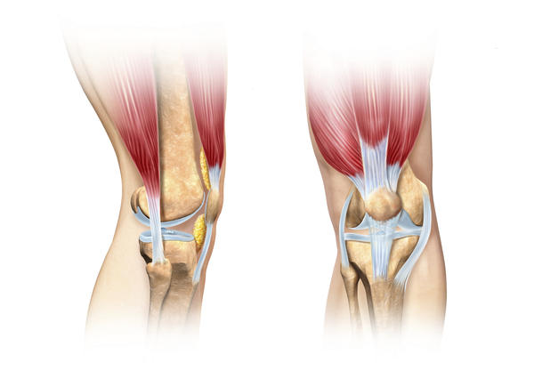 What is meaning of full thickness chondral loss to medial patella and what is heterogeneity of lateral patellar?