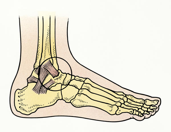 How do I treat a sprained ankle from football?
