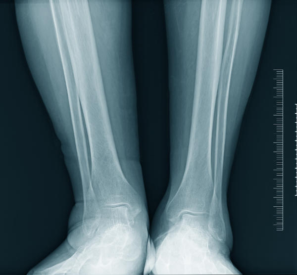 What are the symptoms of an ankle sprain or break?