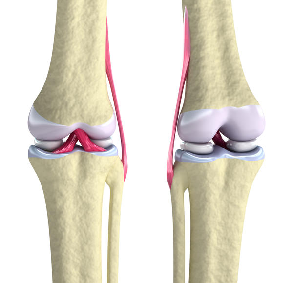 I have chronic clicking and clunking of the knee joint. What coul be the problem?  What is the difference of a displacement of the root or meniscus?