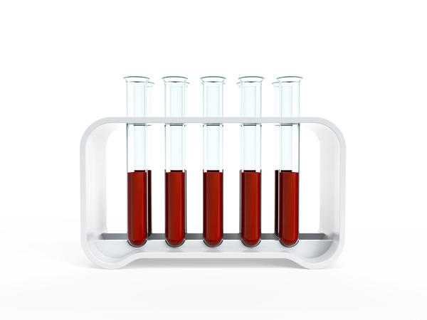 How can I get a interpretation of urine lab results took a litholink urine test and don't understand some of the results?