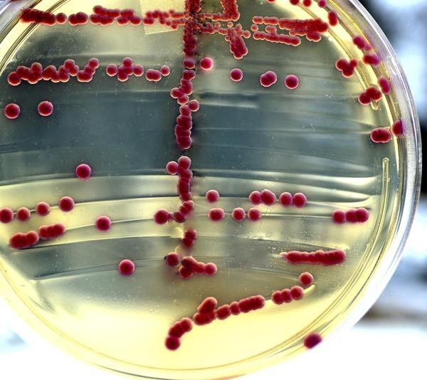 What causes enterococcus faecalis in your semen, semen culture was positive for light growth?