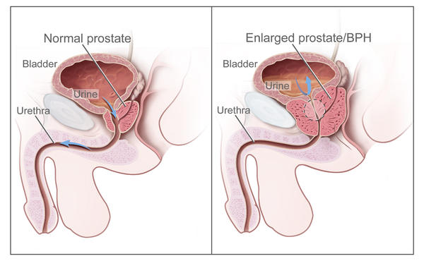How is an enlarged prostate normally treated?
