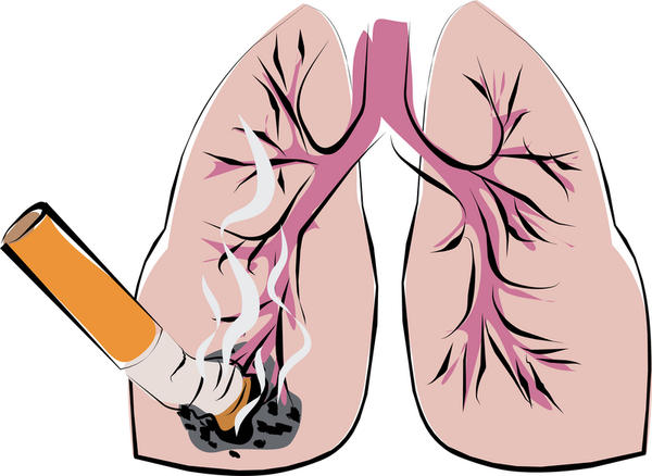 When a person has lung cancer, are the symptoms before death vomiting blood?