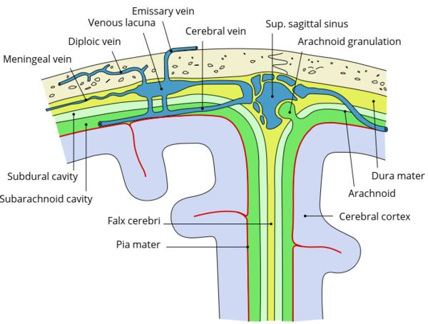 Can a cranial spinal fluid leak be caused by a papilledema or swelling of the optic nerve?