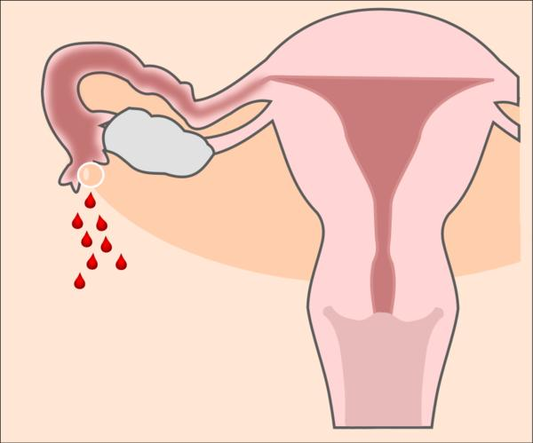 How do you now for sure that you have ovulated after an abortion?