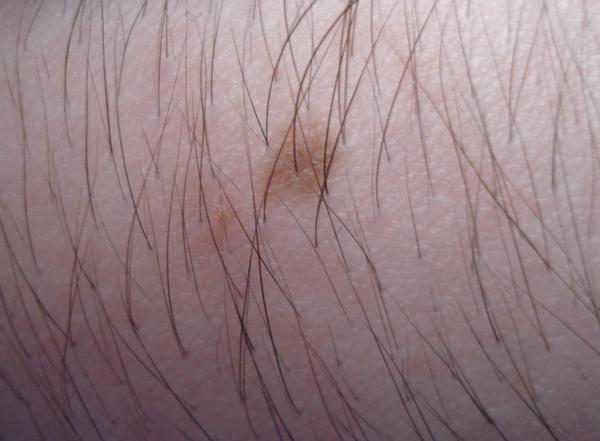 What causes dark lesions like moles to appear on face, ears, arms, and chest?