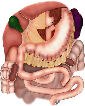Stomach bypass surgery safe?