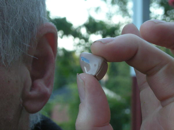 Your grandfather suffers from hearing loss. Is his hearing loss due to prolonged exposure?