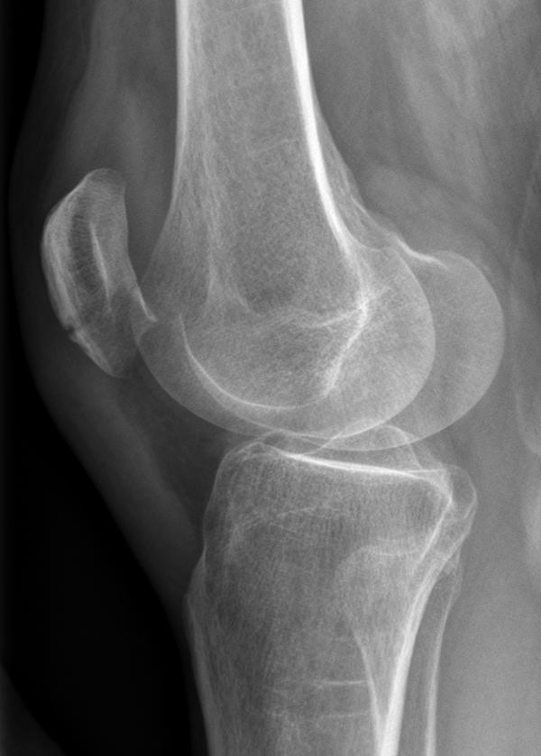 Baker's cyst behind right knee
