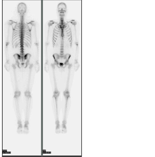 Does bone scan process involve any exposure to radiation as in x ray?