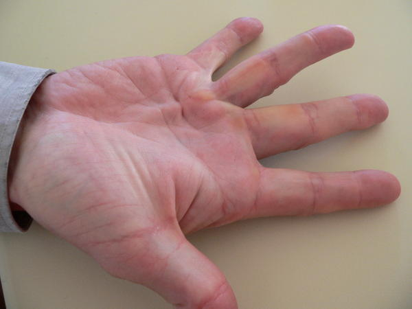 Does dupuytren's disease have any relationship to carpal tunnel syndrome?