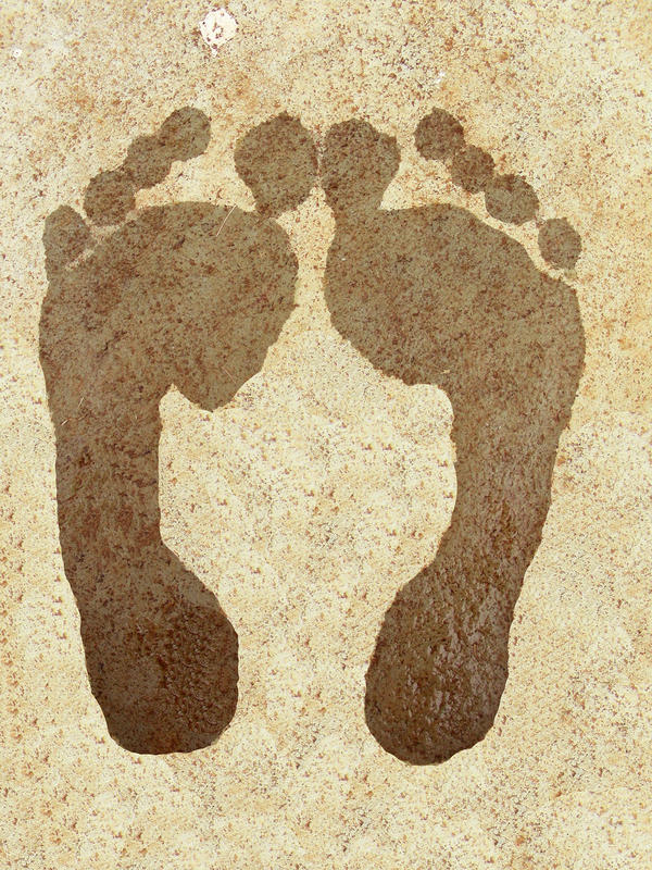 What causes swollen feet?