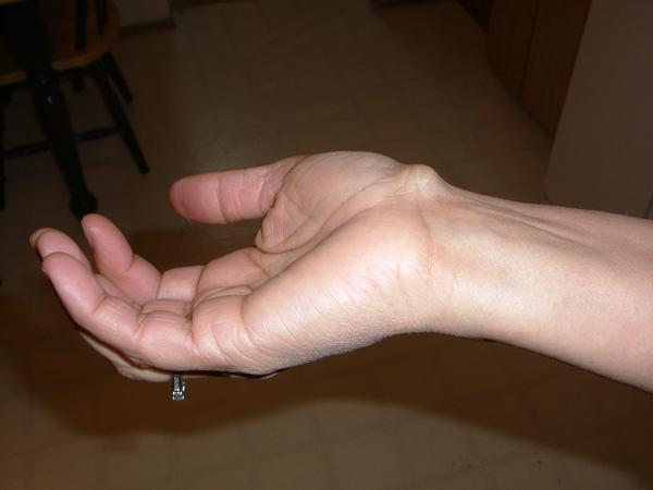 What do you think of dropping book on ganglion cyst for treatment?