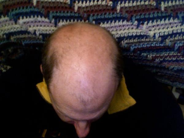 I am 22 and loosing hair and has black spots randomly along his scalp. Spots are new hair loss is not. Mom thinks it's from using rogaine?