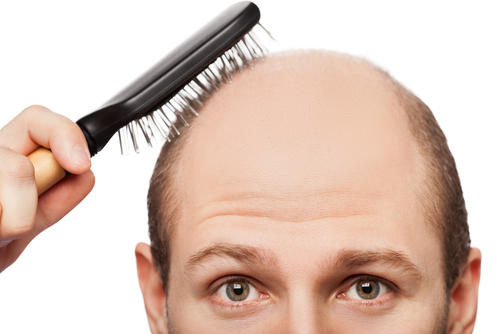 What could cause bald spots in hair?