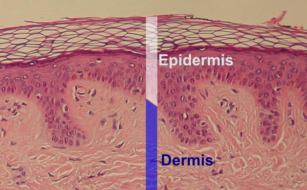 What does discontinuity in epidermis mean in layman terms?