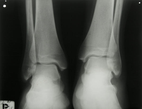What is the most common treatment for a fractured ankle?