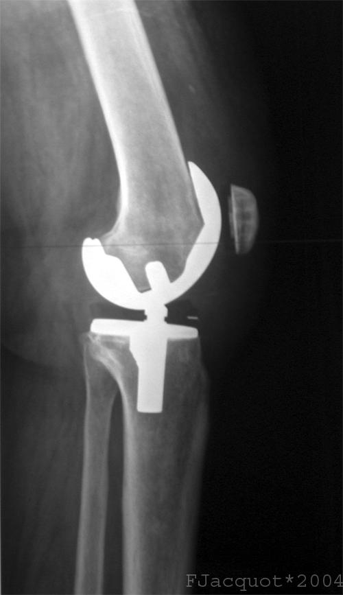 Could  the entire femur bone be replaced along with a total knee replacement?