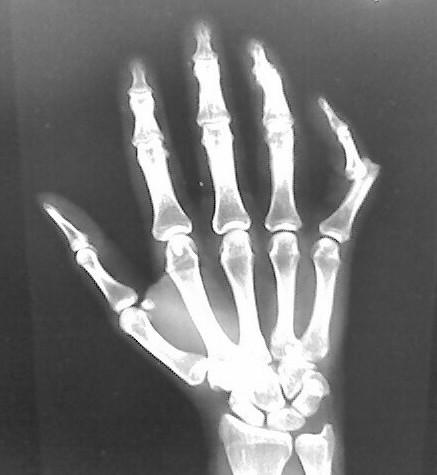 How do you tell if you have a complete dislocation?
