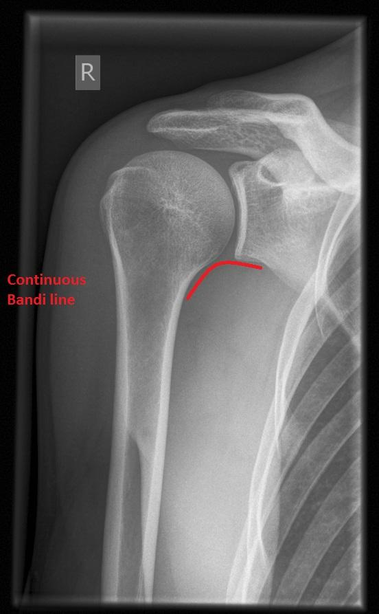 My 40yr f old friend has high grade partial thickness instrasubstance tear involving the distal supraspinatus tendon 80%thickness is this bad?