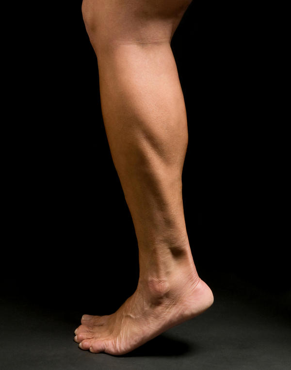 What are the symptoms of Achilles tendonitis?