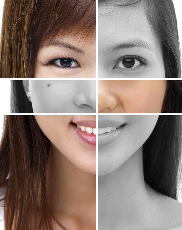 Cosmetic surgery to get rid of uneven skin color. Does that work if fair?