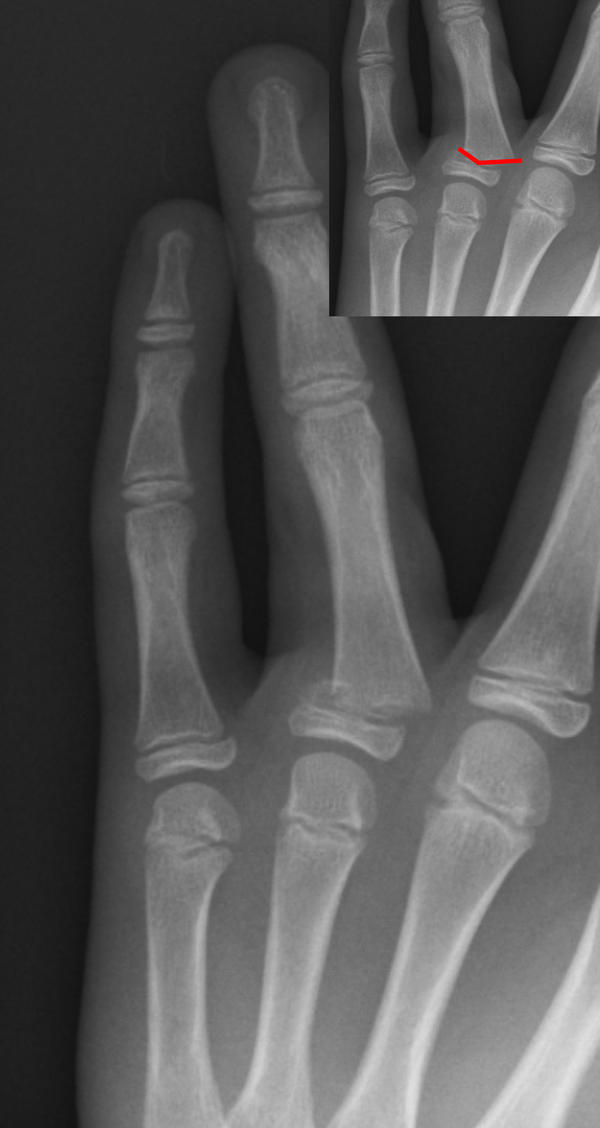 Hello is it possible to see a blood vessel on an x ray or have I got a fractured finger?