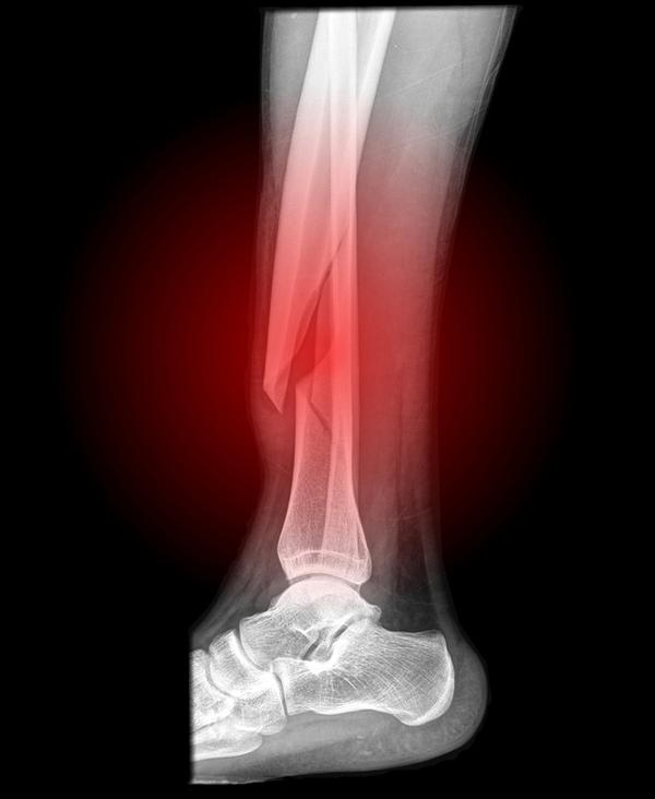 What is the main difference between a fractured leg and a broken leg?