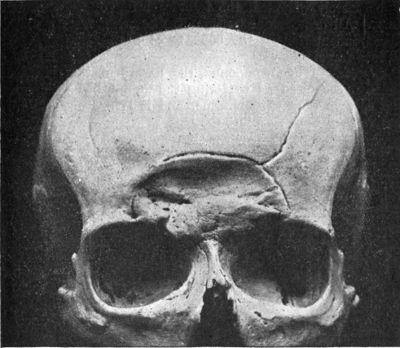 Is it possible for a skull fracture/crack cause internal bleeding quickly?