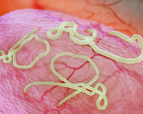 "How long is an ""ebola"" virus alive?"