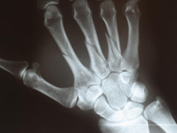What does a fractured thumb look like?
