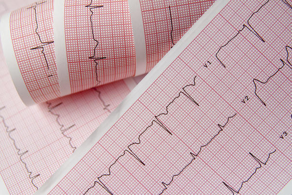 How to know what is angina and can it be serious?