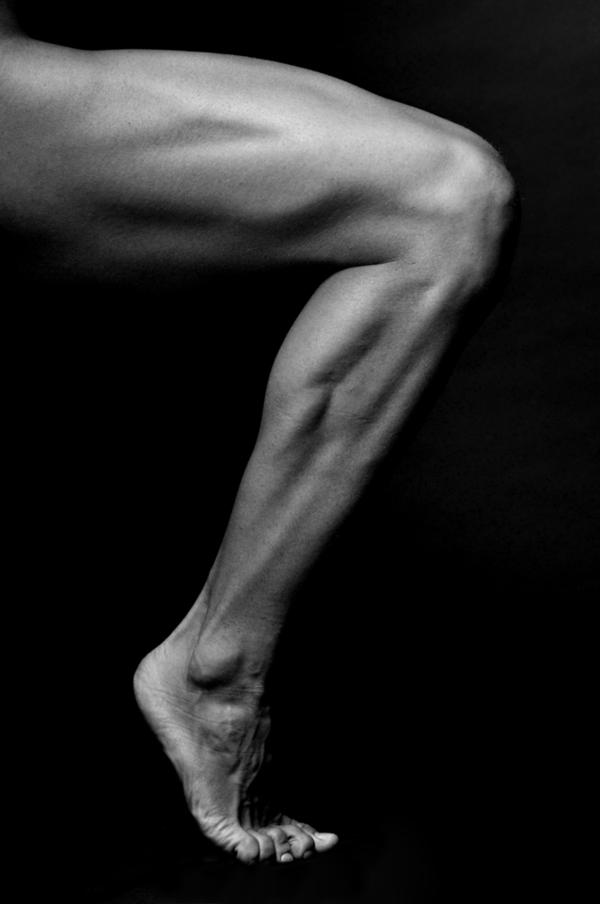 Can leg claudication ever get better on its own?