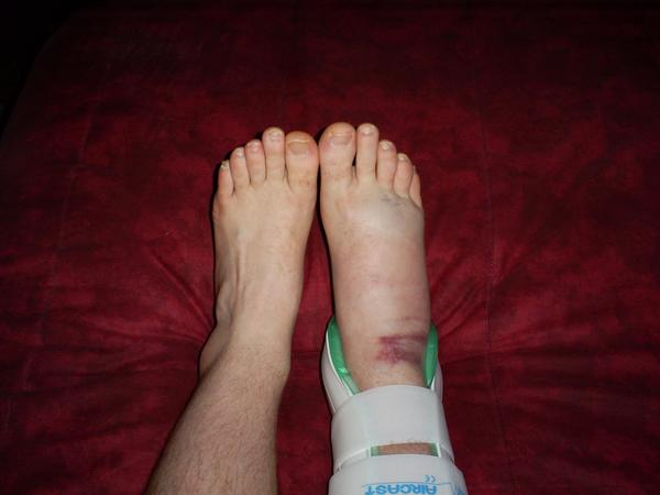 How is a high ankle sprain treated?