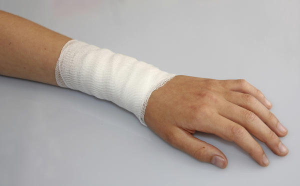What is the typical healing time for a broken arm?