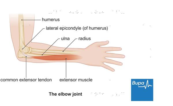 How is lymphnodes in your arm diagnosed?