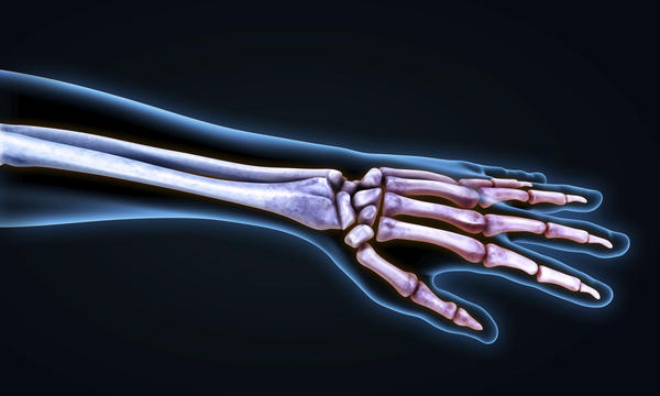 What is the definition or description of: Forearm fractures?