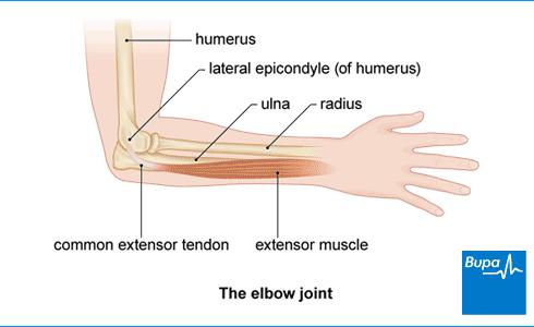 Front deltoid muscle severe pain every time I elbow backwards or extend my arm towards shoulder blade. Is it sore? Injured?