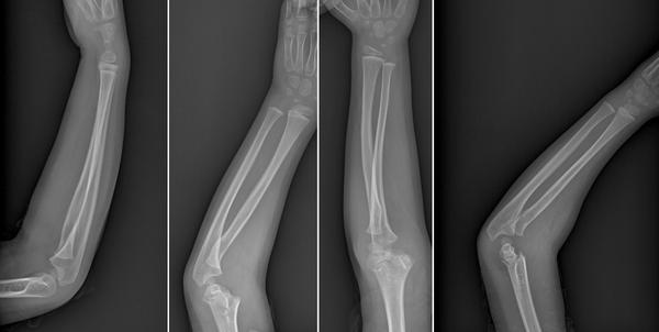 Every now and then my lunate bone in my wrist hurts the bone in the middle to move it put weight on it  lift anything arthritis possibly?my arm hurt 2